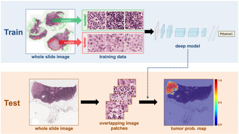 Deep Learning System Improves Breast Cancer Detection